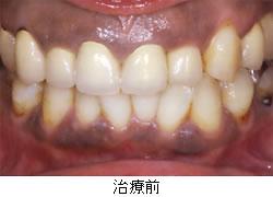 歯ぐきの黒ずみ・術前