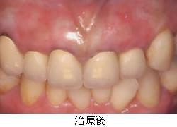 歯ぐきの黒ずみ・術後